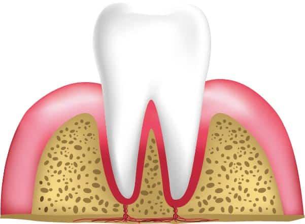 Etapas de las enfermedades periodontales: una encía sana no debe verse enrojecida ni inflamada.
