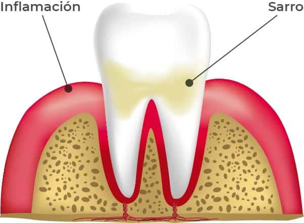 Etapas de las enfermedades periodontales: Gingivitis. En esta etapa, la encía se enrojece, se inflama y el dientes tiene sarro.