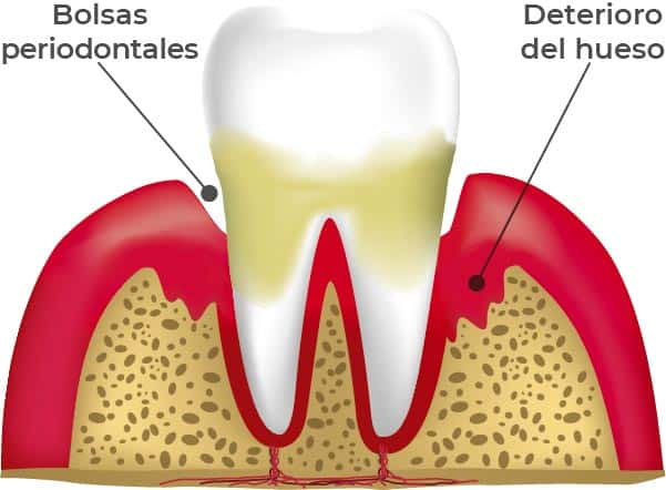 Etapas de las enfermedades periodontales: Periodintitis. En esta etapa, la encía se enrojece, se inflama y el dientes tiene sarro. Pero, además, comienza a deteriorarse el hueso.
