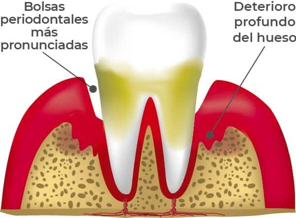 Etapas de las enfermedades periodontales: Periodintitis severa. En esta etapa el deterioro el hueso es aún mayor y, lo más factible, es que el tratamiento requiera de una cirugía.