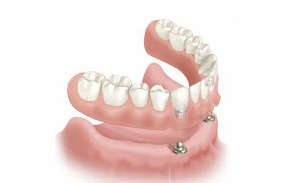 implante_dental_sobredentadura