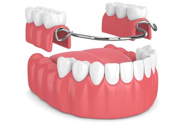 Ilustración de una prótesis dental removible