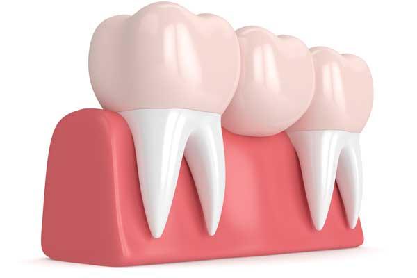 prótesis dental. prótesis dentales.