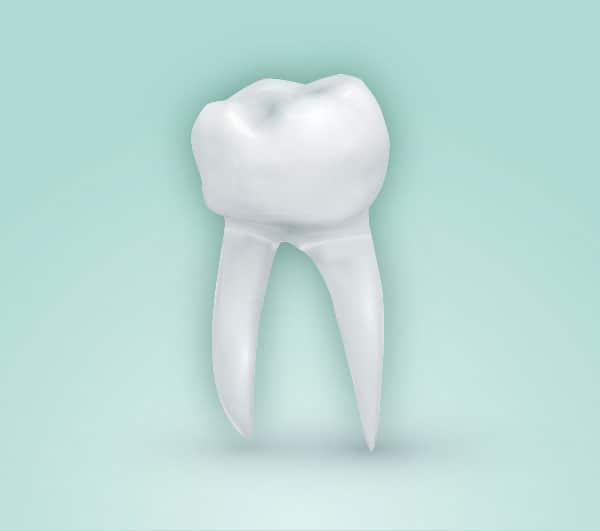 Tipos de endodoncia. Endodoncia birradicular. El diente afectado tiene dos raices y dos conducto pulpares.