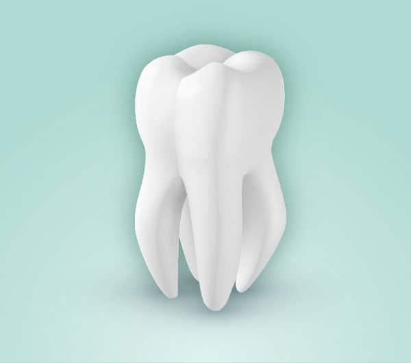 Tipos de endodoncia. Endodoncia polirradicular. El diente afectado tiene más de dos raíces y más de dos conductos pulpares