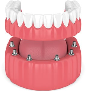 Prótesis dental: prótesis fija de dentadura completa