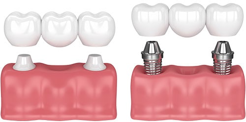 Prótesis dental: puente dental & puente sobre implantes