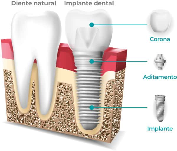 Implante dental - Qué es