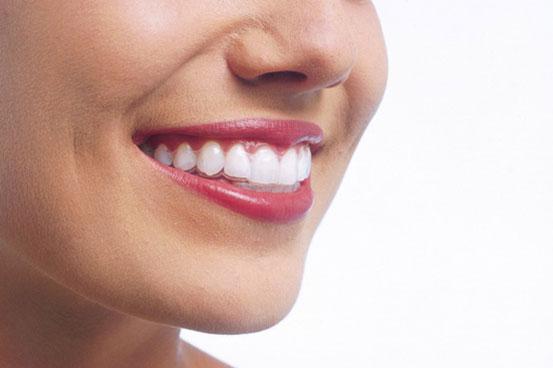 Ortodoncia transparente (Invisalign)