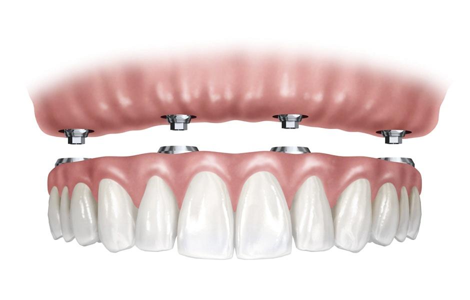 Prótesis fija sobre 4 implantes dentales