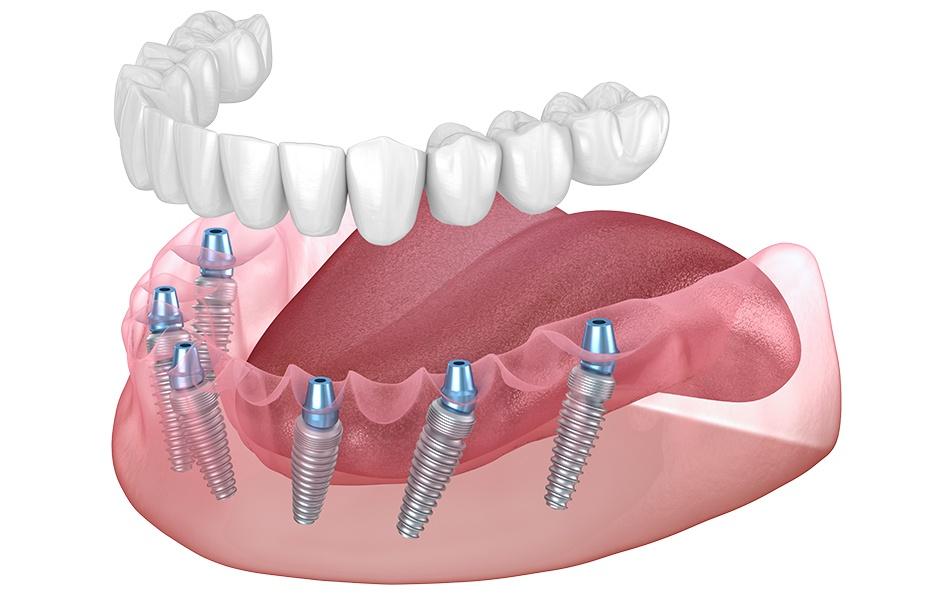 Rehabilitación completa sobre 6 implantes dentales