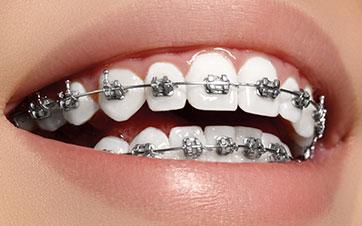 Ortodoncia: brackets metálicos