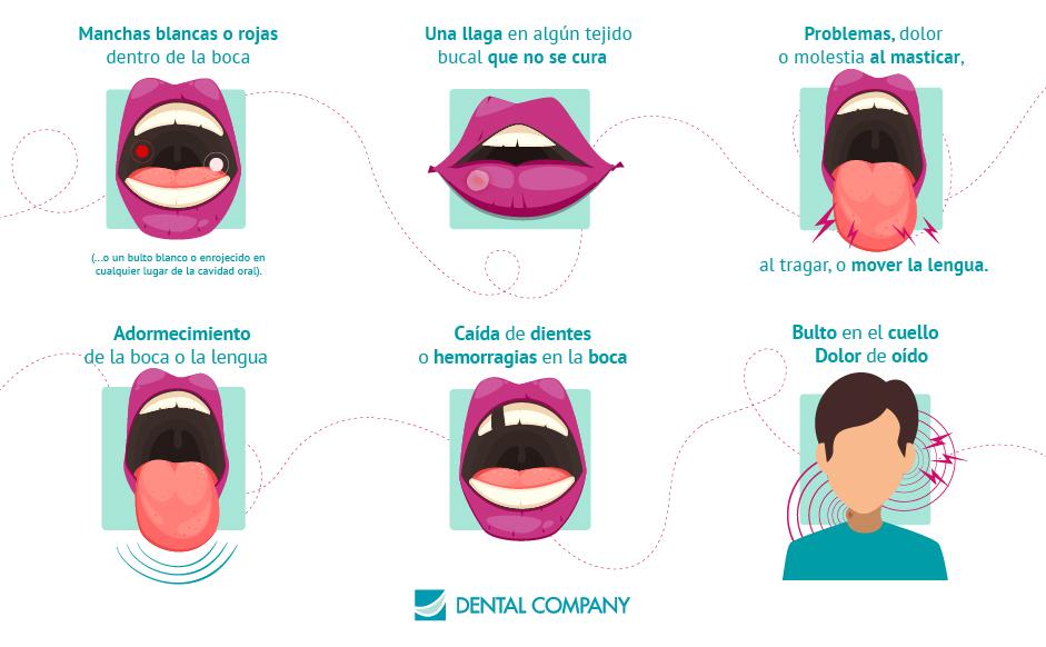 Síntomas Cáncer Oral